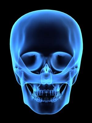 Кости черепа