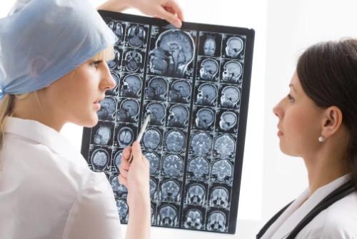 причины сильной головной боли