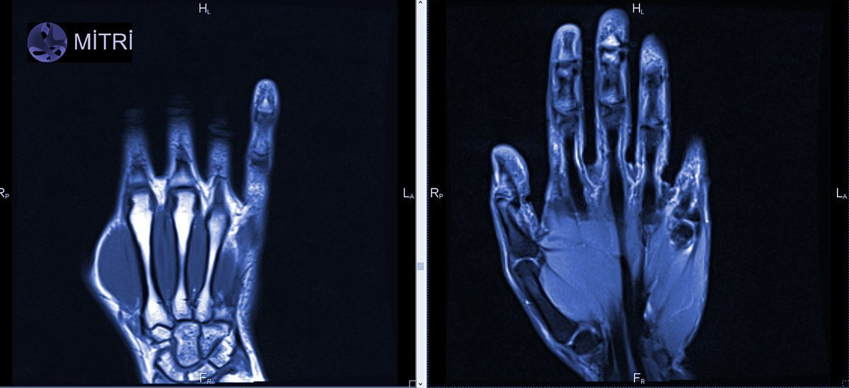 снимок мрт лучезапястного сустава с контрастом