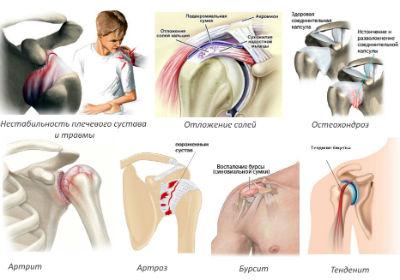 причины боли в плече